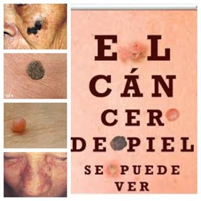 Dermatologia Veracruz
